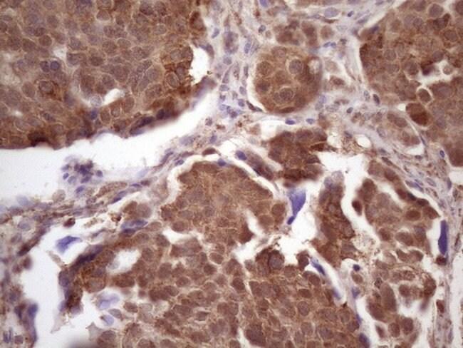 TP53RK Mouse anti-Human, Clone: OTI4D10, lyophilized, TrueMAB  100 µg;