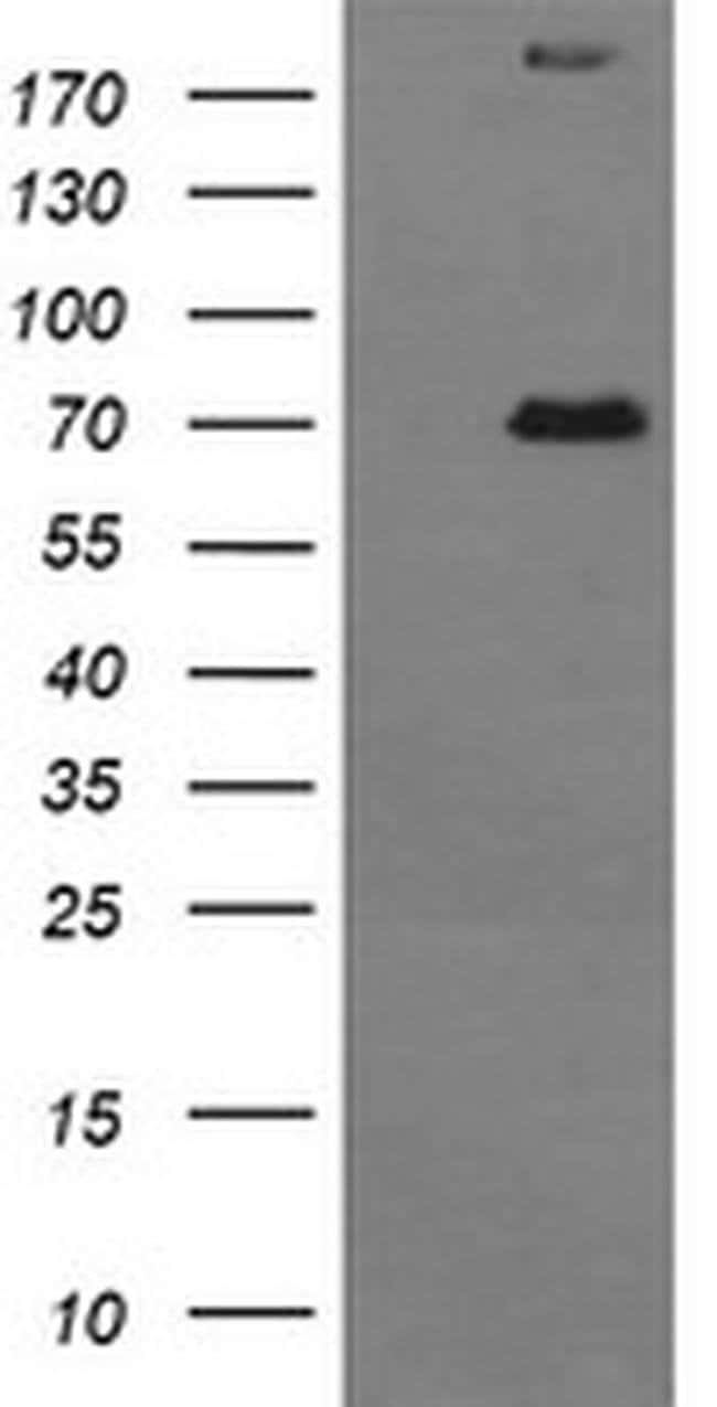 TP73 Mouse anti-Human, Clone: OTI2H2, liquid, TrueMAB  100 µL; Unconjugated