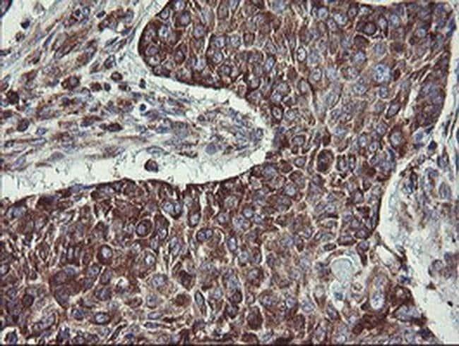 TPD52L3 Mouse anti-Human, Clone: OTI8C12, liquid, TrueMAB  100 µL;