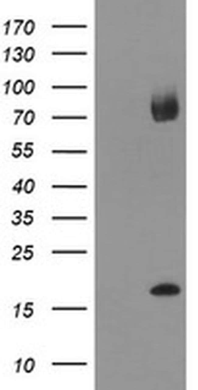 TPD52L3 Mouse anti-Human, Clone: OTI2D2, liquid, TrueMAB  100 µL;