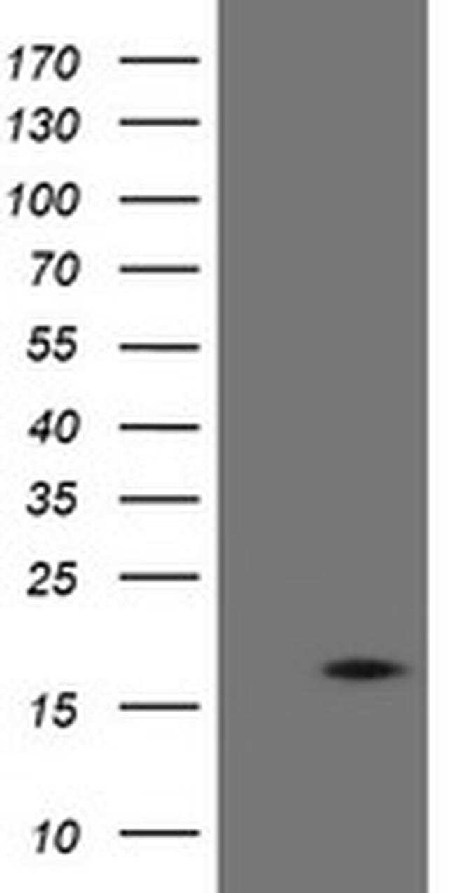 TPD52L3 Mouse anti-Human, Clone: OTI4C12, liquid, TrueMAB  100 µL;