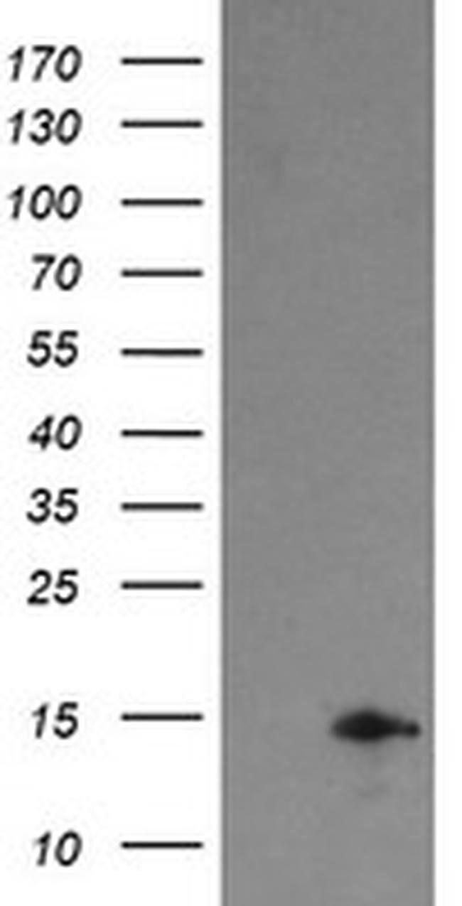 TPD52L3 Mouse anti-Human, Clone: OTI4G6, liquid, TrueMAB  100 µL;