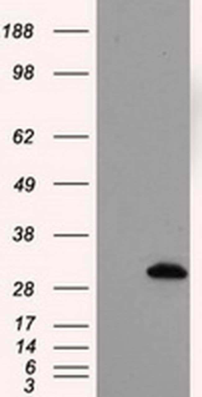 TPMT Mouse anti-Human, Clone: OTI4B1, liquid, TrueMAB  100 µL; Unconjugated