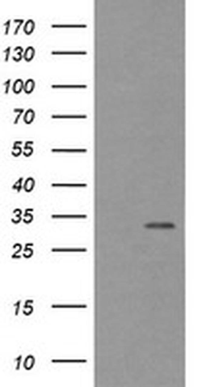 TPSG1 Mouse anti-Human, Clone: OTI2H5, liquid, TrueMAB  100 µL; Unconjugated