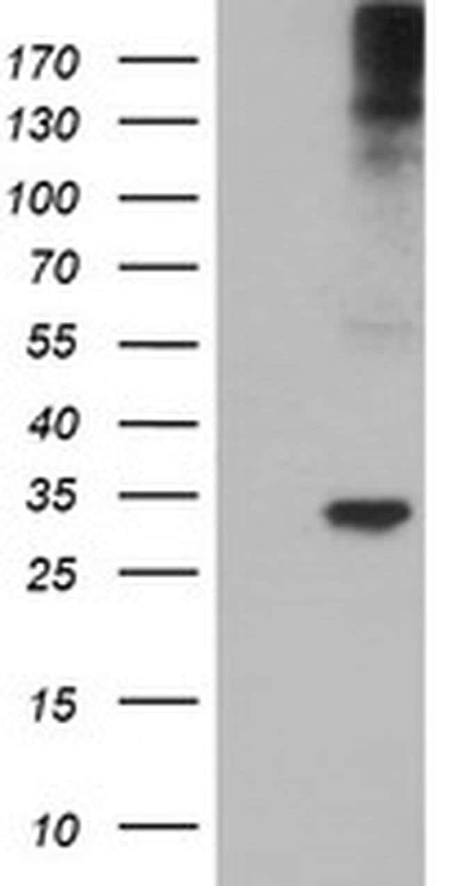TPSG1 Mouse anti-Human, Clone: OTI1E6, liquid, TrueMAB  100 µL; Unconjugated