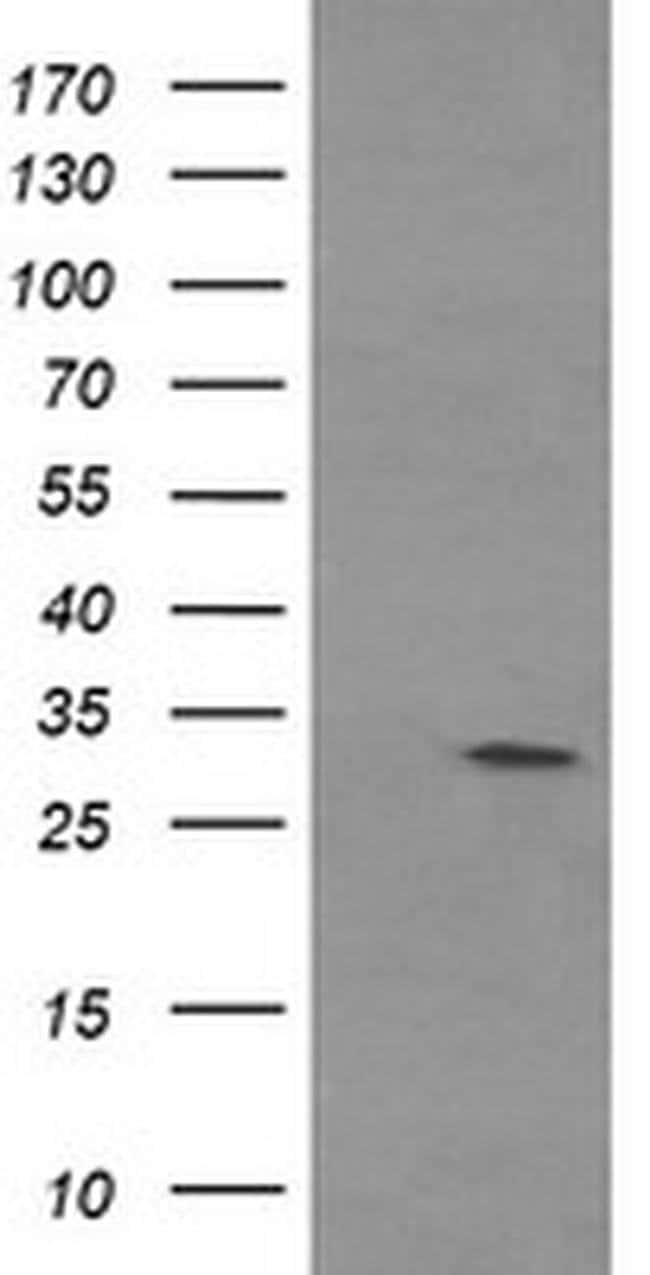 TPSG1 Mouse anti-Human, Clone: OTI1E11, liquid, TrueMAB  100 µL; Unconjugated