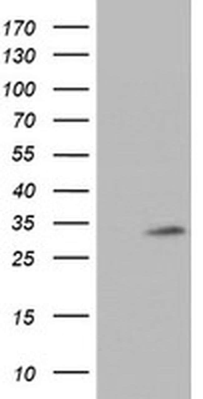 TPSG1 Mouse anti-Human, Clone: OTI2A10, liquid, TrueMAB  100 µL; Unconjugated