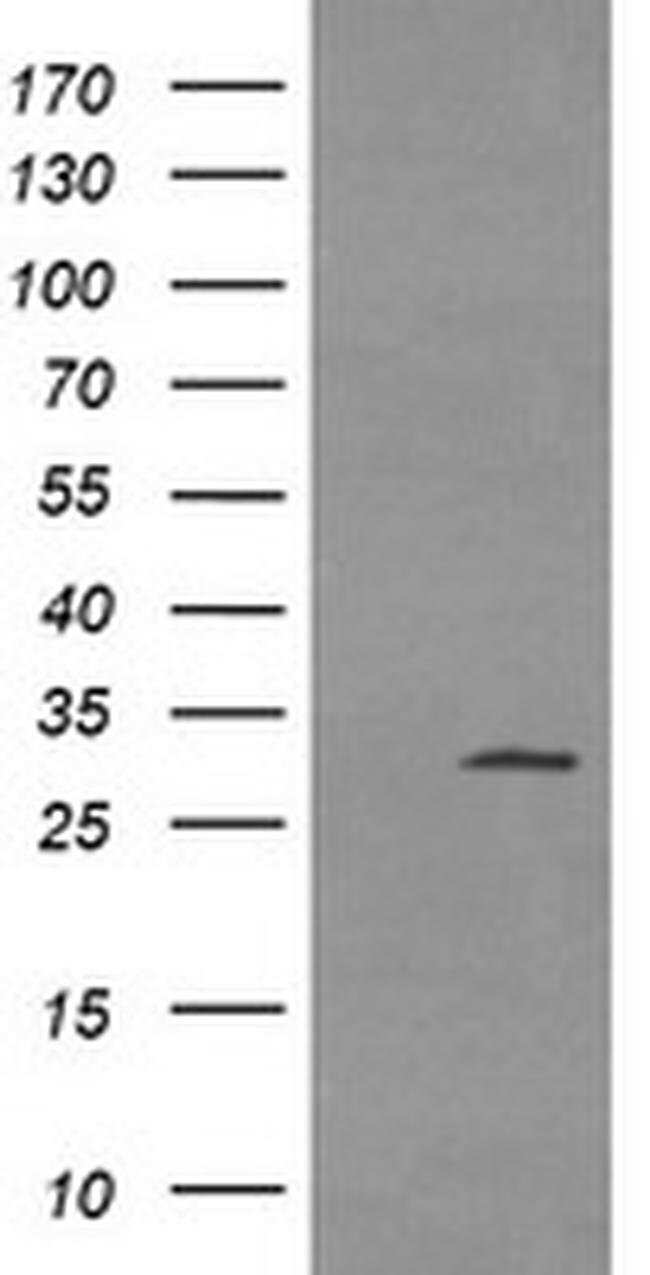 TPSG1 Mouse anti-Human, Clone: OTI4E1, liquid, TrueMAB  100 µL; Unconjugated