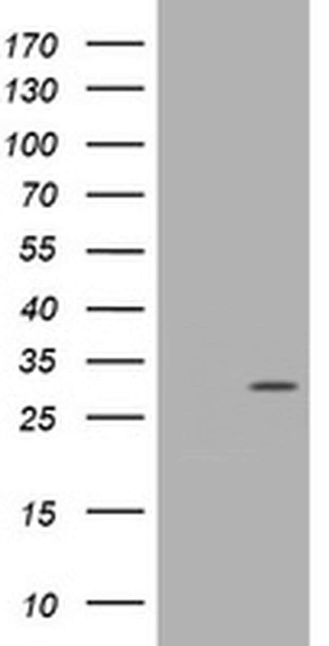 TRAPPC4 Mouse anti-Human, Clone: OTI1D10, liquid, TrueMAB  100 µL;