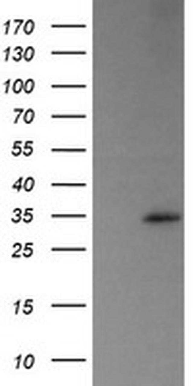 TRAPPC4 Mouse anti-Human, Clone: OTI2E1, liquid, TrueMAB  100 µL;