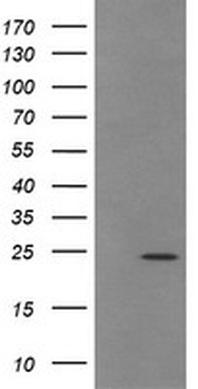 TRAPPC4 Mouse anti-Human, Clone: OTI2G8, liquid, TrueMAB  100 µL;