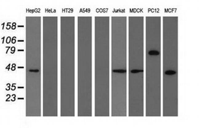 TRIM2 Mouse anti-Human, Rat, Clone: OTI4E5, liquid, TrueMAB  100 µL;