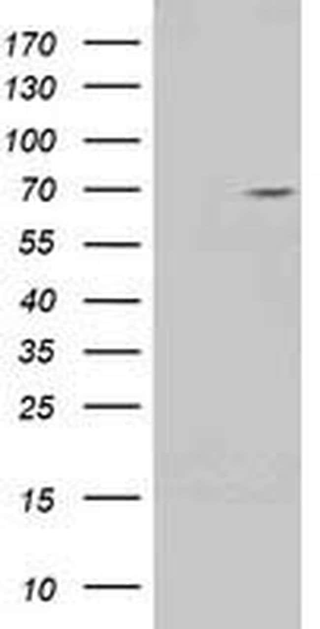 TRIM2 Mouse anti-Human, Clone: OTI3B5, liquid, TrueMAB  100 µL; Unconjugated