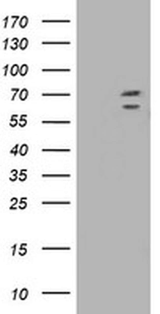 TRIM2 Mouse anti-Human, Clone: OTI2B10, liquid, TrueMAB  100 µL; Unconjugated