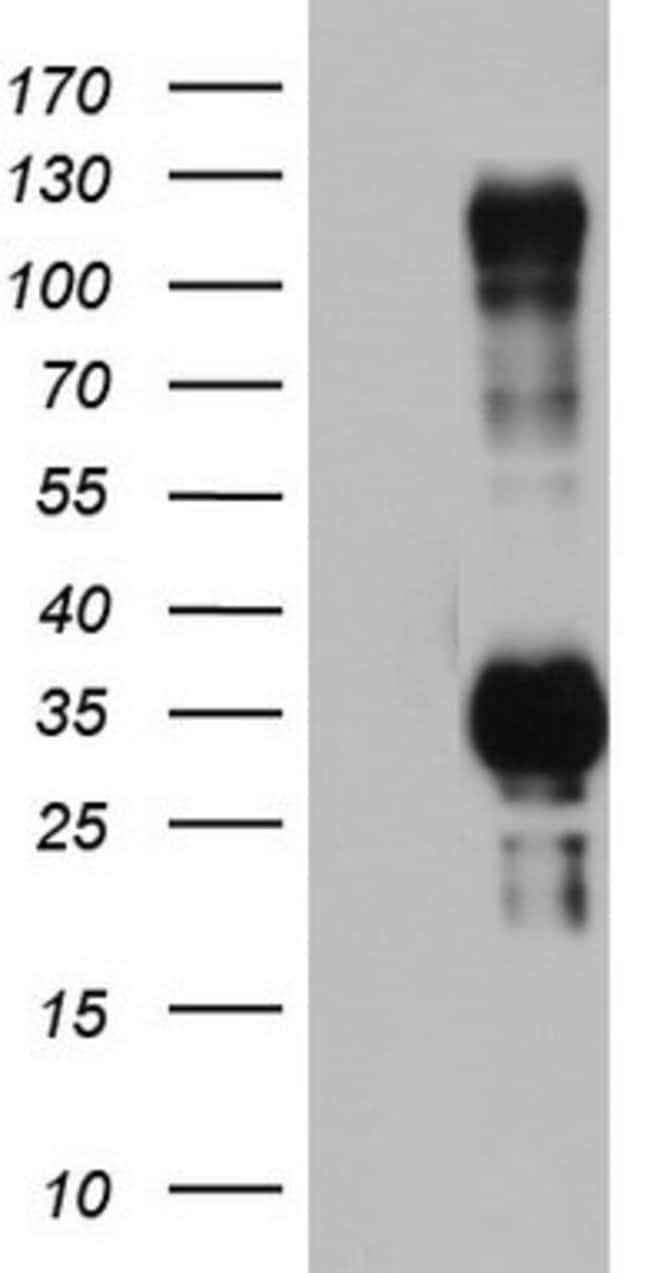 TRIM24 Mouse anti-Human, Clone: OTI3A8, lyophilized, TrueMAB  100 µg;