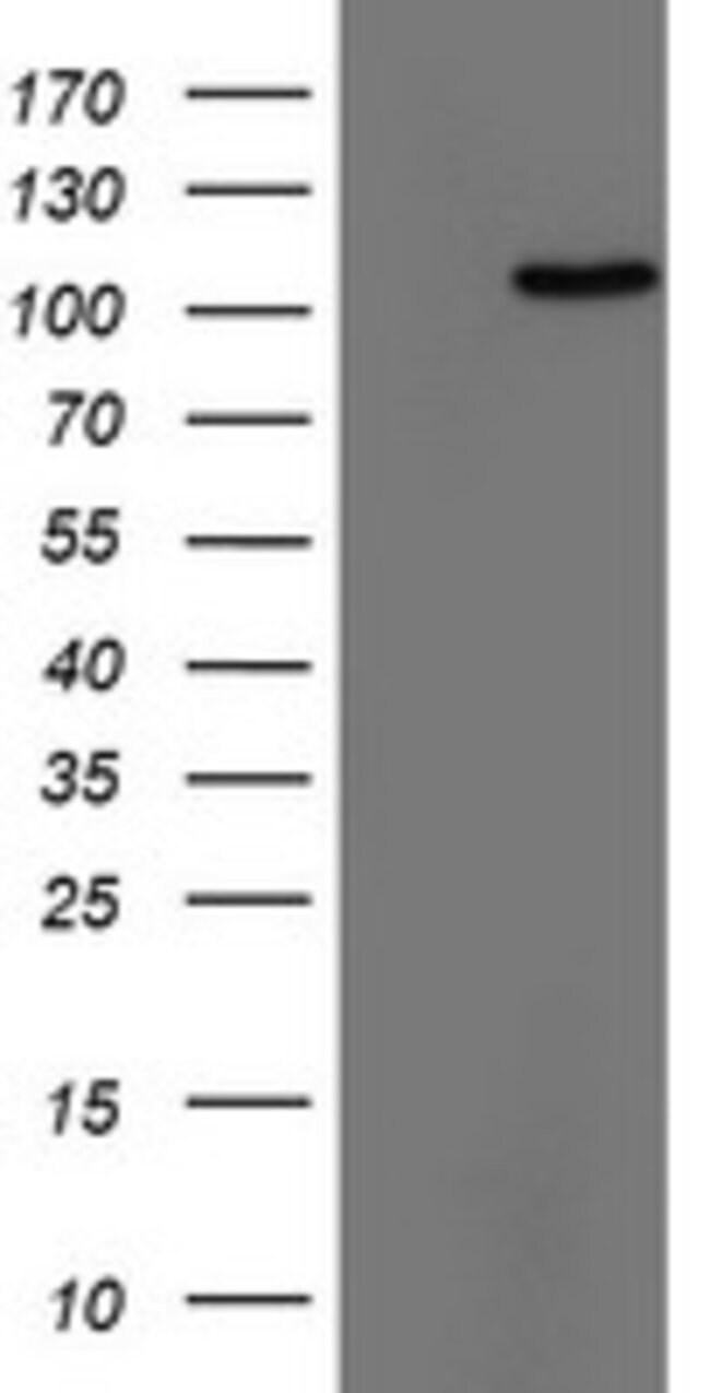 TRIM24 Mouse anti-Human, Clone: OTI1D4, lyophilized, TrueMAB  100 µg;