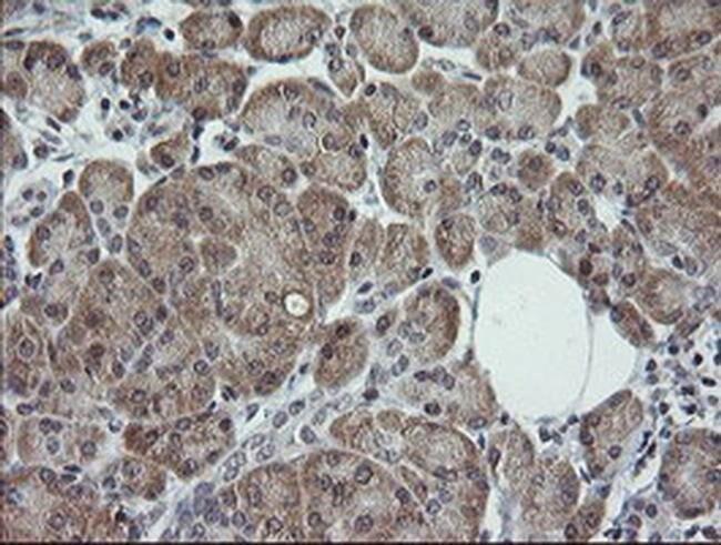 TRIM44 Mouse anti-Human, Clone: OTI5C2, liquid, TrueMAB  100 µL; Unconjugated
