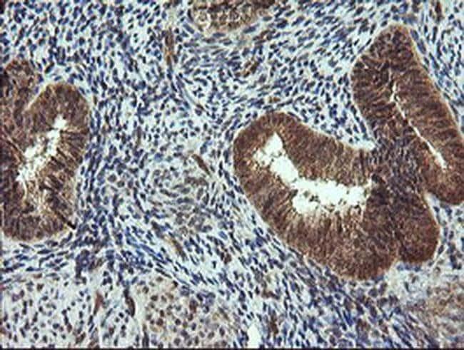 TRIM44 Mouse anti-Human, Clone: OTI1E10, liquid, TrueMAB  100 µL;