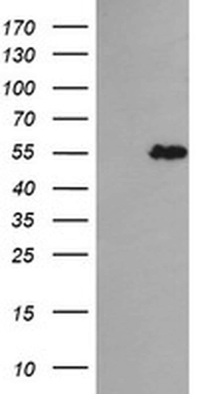 TRIM44 Mouse anti-Human, Clone: OTI2H4, liquid, TrueMAB  100 µL; Unconjugated