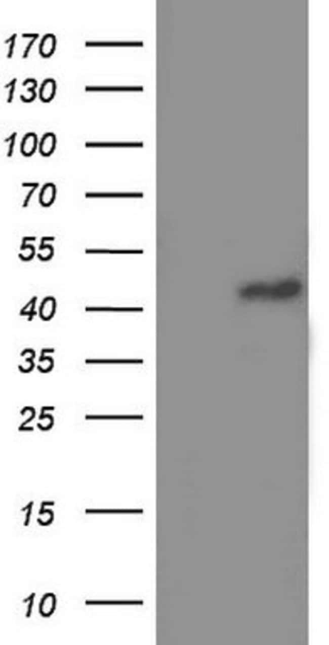 TRIM54 Mouse anti-Human, Clone: OTI2A11, lyophilized, TrueMAB  100 µg;
