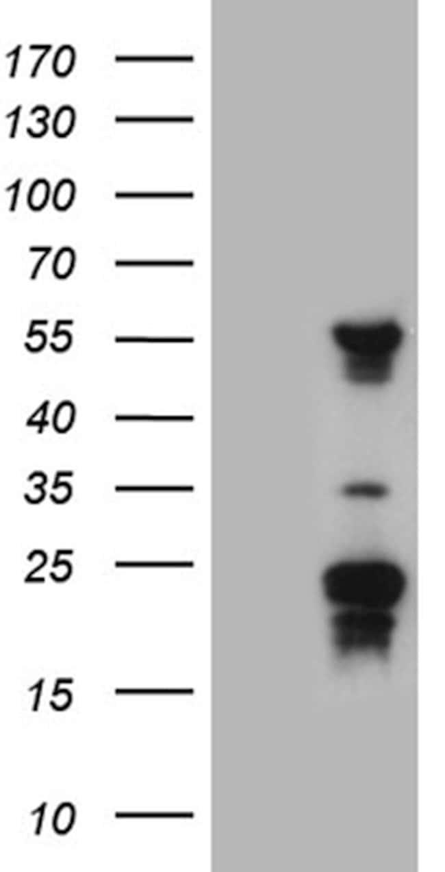 TRMT12 Mouse anti-Human, Clone: OTI3C10, lyophilized, TrueMAB  100 µg;