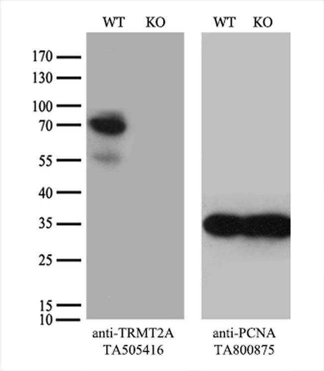 TRMT2A Mouse anti-Human, Clone: OTI2A1, liquid, TrueMAB  100 µL; Unconjugated