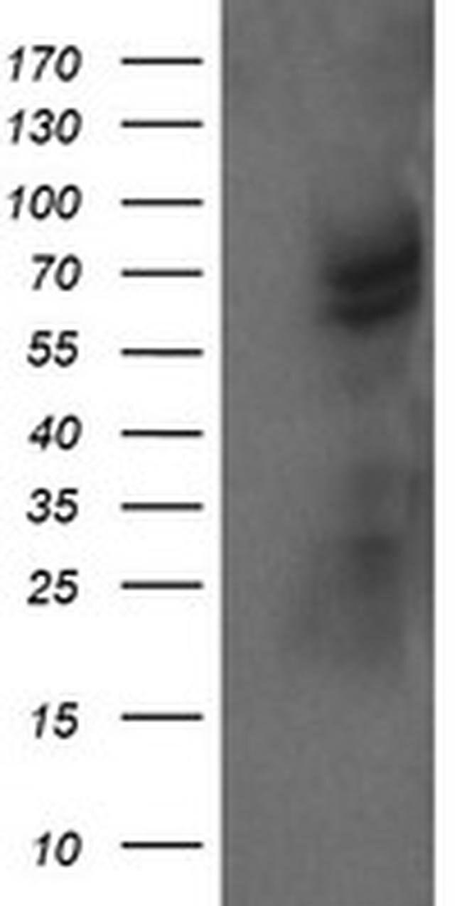 TRMT2A Mouse anti-Human, Clone: OTI1H8, liquid, TrueMAB  100 µL; Unconjugated