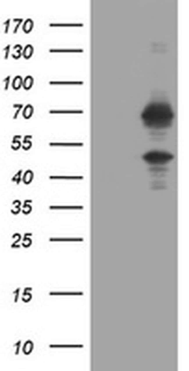 TRMT2A Mouse anti-Human, Clone: OTI1G8, liquid, TrueMAB  100 µL; Unconjugated