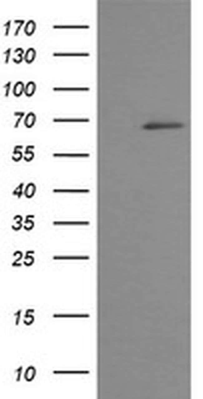 TRMT2A Mouse anti-Human, Clone: OTI3D8, liquid, TrueMAB  100 µL; Unconjugated