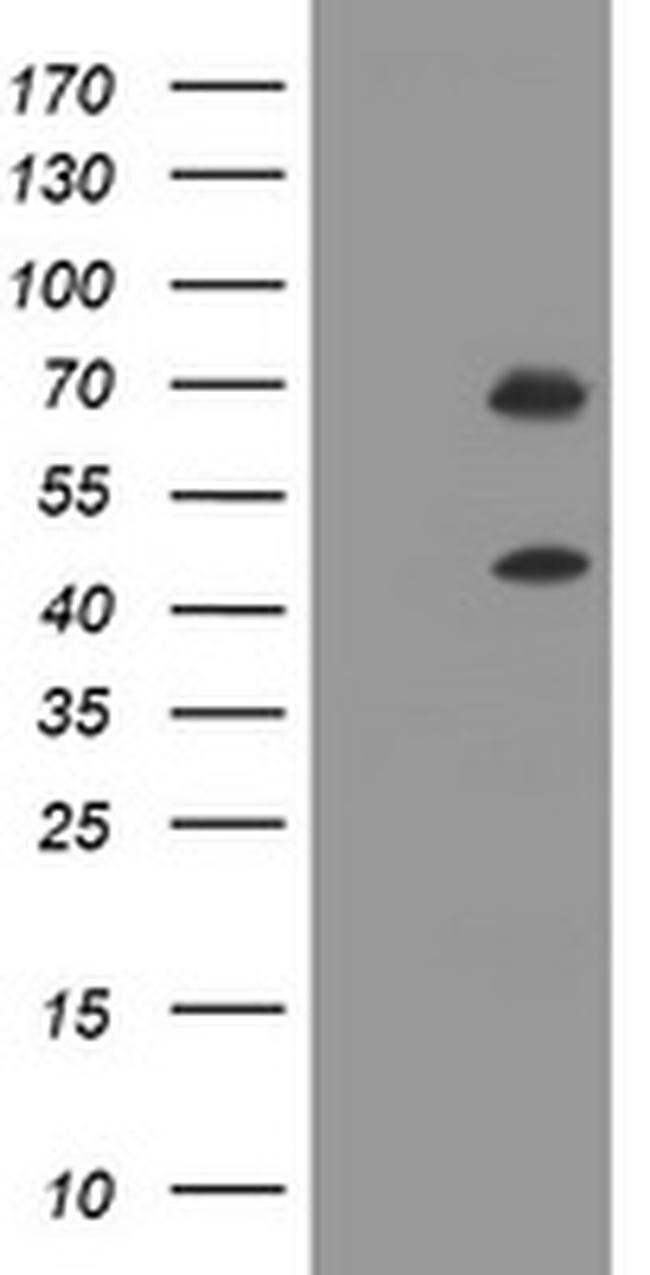 TRMT2A Mouse anti-Human, Clone: OTI3B7, liquid, TrueMAB  100 µL; Unconjugated