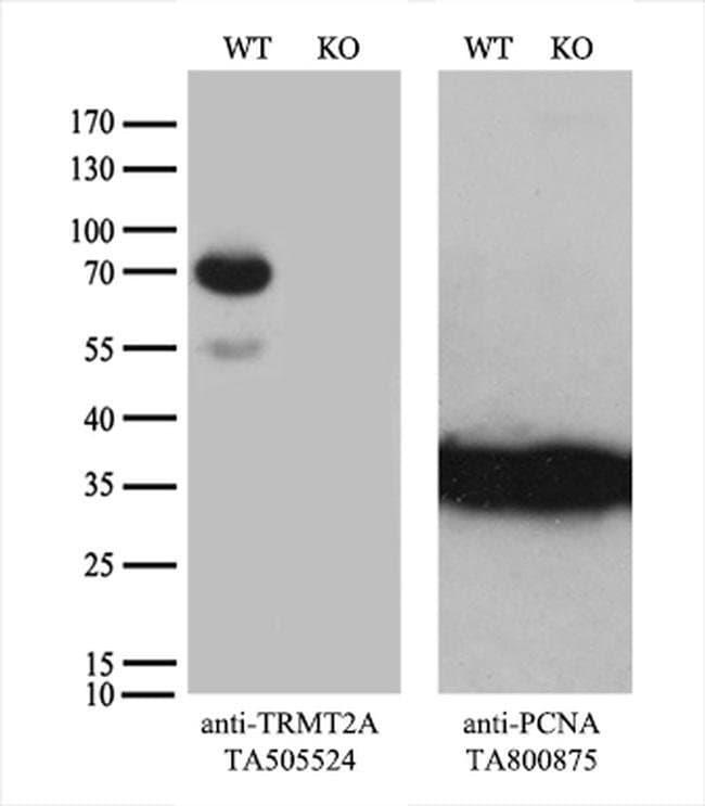 TRMT2A Mouse anti-Human, Clone: OTI3B3, liquid, TrueMAB  100 µL; Unconjugated