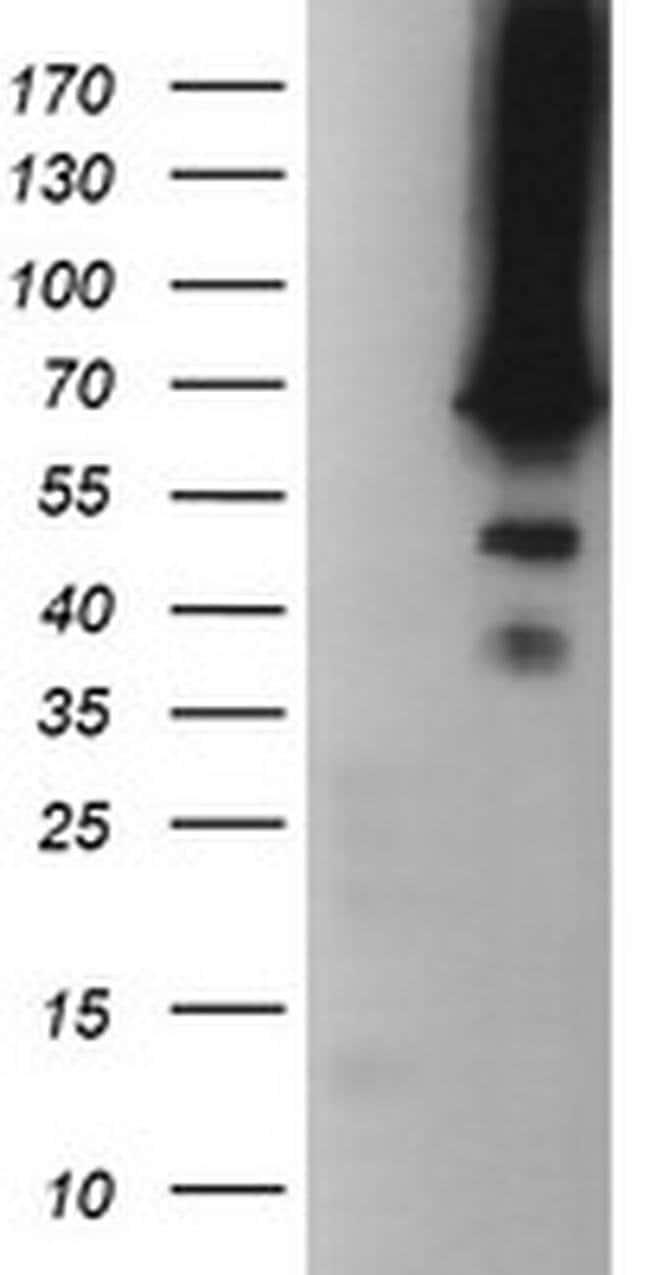 TRMT2A Mouse anti-Human, Clone: OTI1C3, liquid, TrueMAB  100 µL; Unconjugated