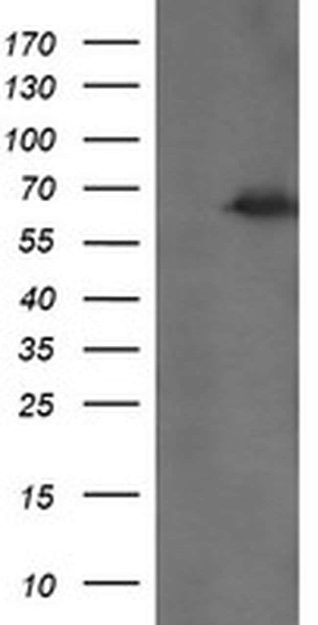 TRMT2A Mouse anti-Human, Clone: OTI1H2, liquid, TrueMAB  100 µL; Unconjugated