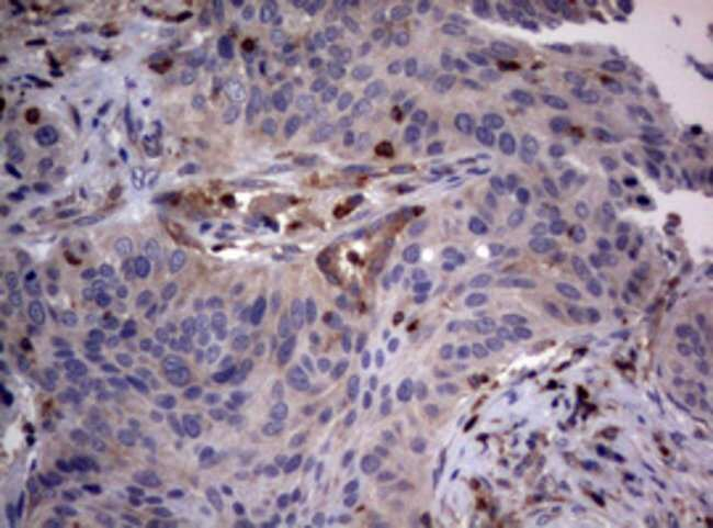 TSC1 Mouse anti-Human, Clone: OTI5A8, lyophilized, TrueMAB  100 µg;