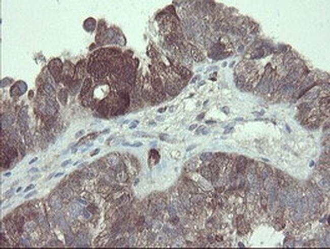 TSC22D1 Mouse anti-Human, Clone: OTI3B7, liquid, TrueMAB  100 µL;