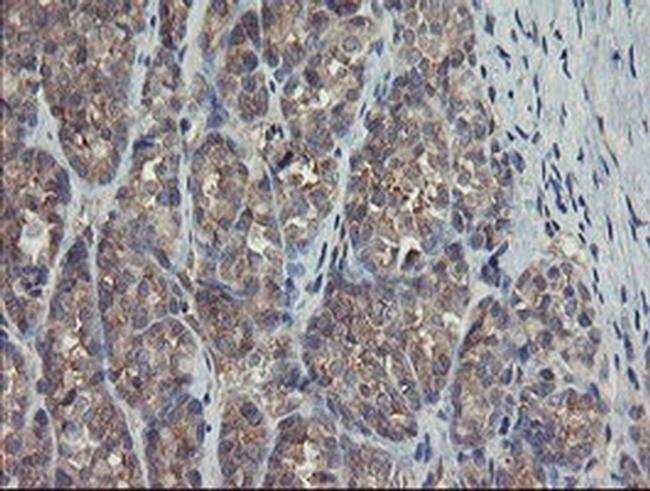 TSC22D1 Mouse anti-Human, Clone: OTI4F1, liquid, TrueMAB  100 µL;