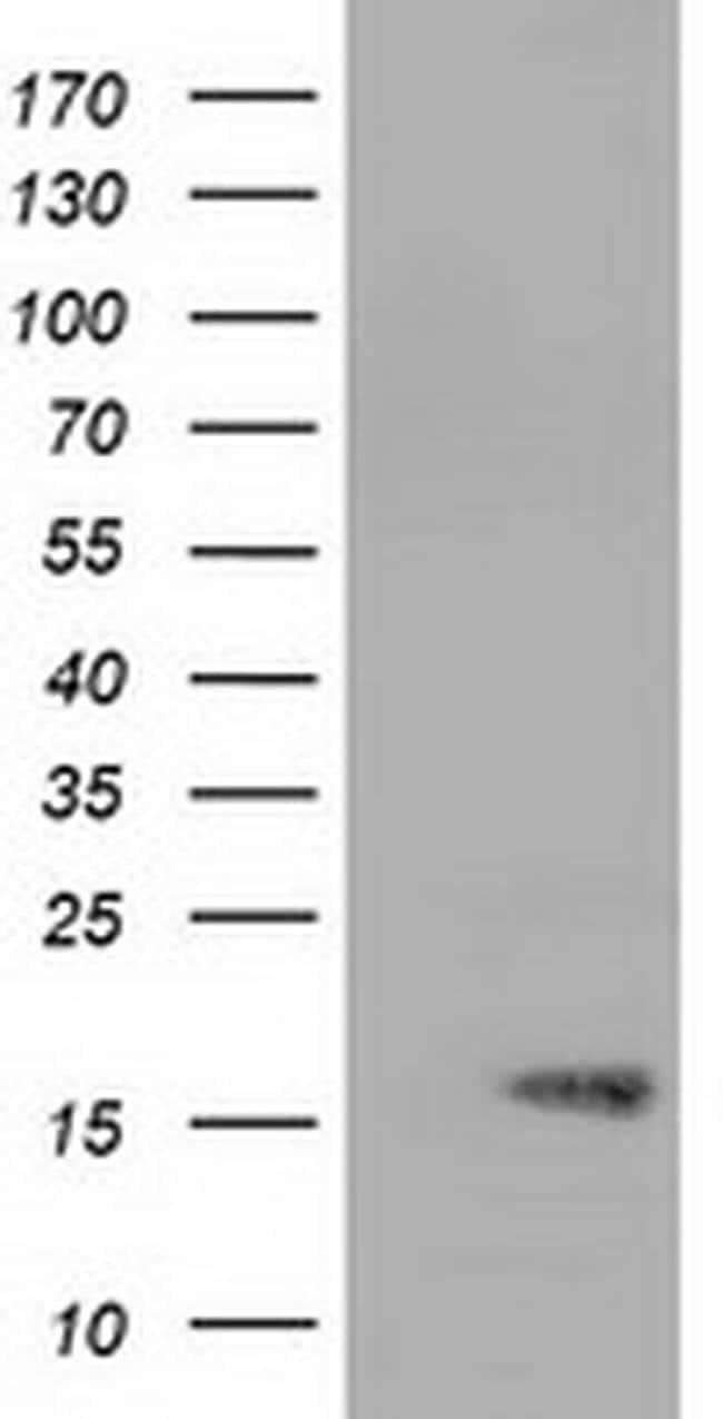 TTC32 Mouse anti-Human, Clone: OTI5B4, liquid, TrueMAB  100 µL; Unconjugated