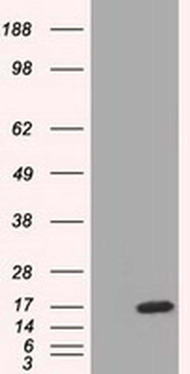TTC32 Mouse anti-Human, Clone: OTI1F4, liquid, TrueMAB  100 µL; Unconjugated