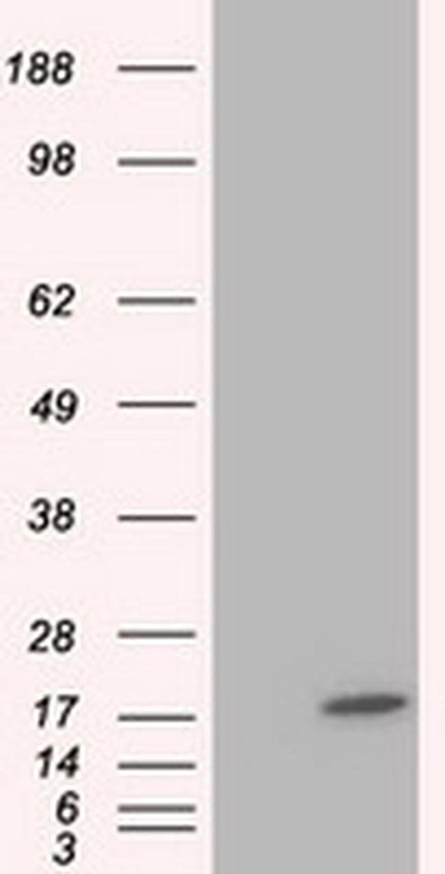 TTC32 Mouse anti-Human, Clone: OTI4B5, liquid, TrueMAB  100 µL; Unconjugated