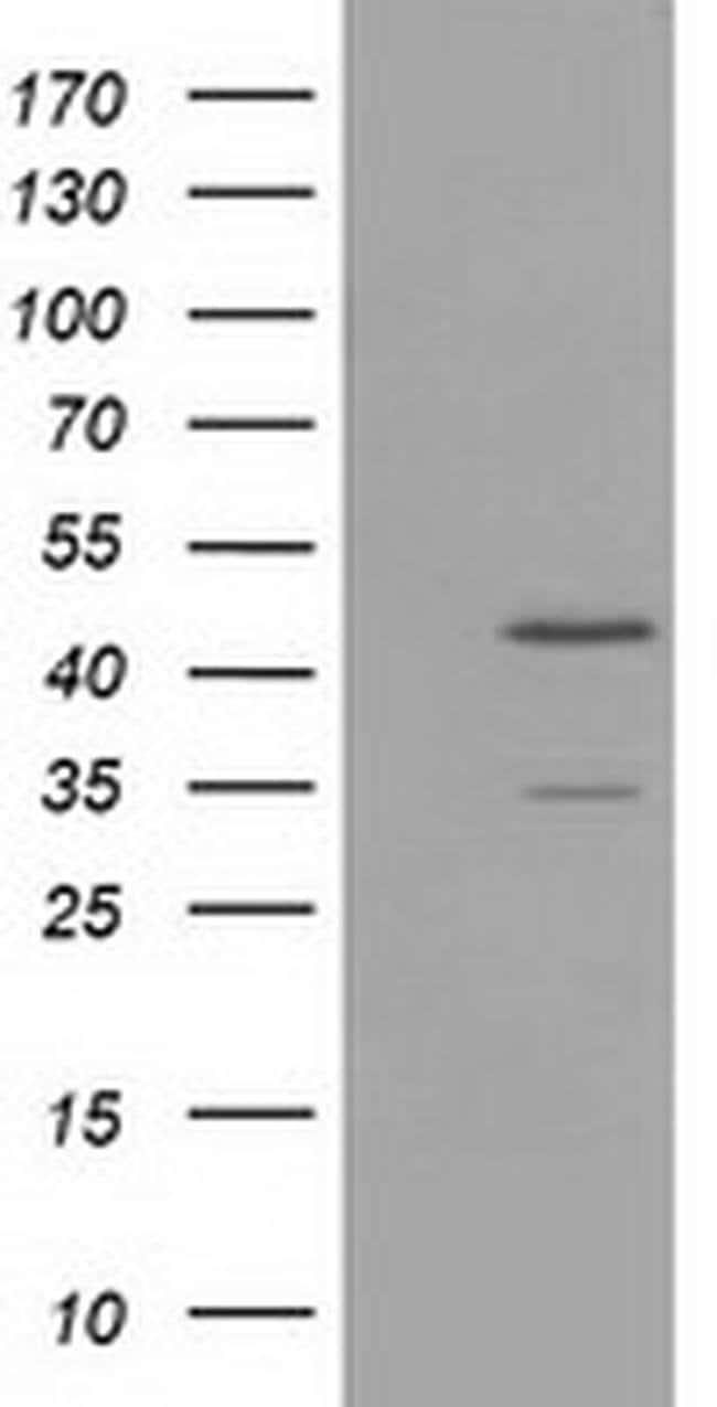 TTL Mouse anti-Human, Clone: OTI3G5, liquid, TrueMAB  100 µL; Unconjugated