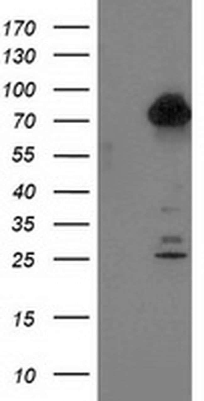 TTLL12 Mouse anti-Canine, Human, Rat, Clone: OTI3H6, liquid, TrueMAB  100