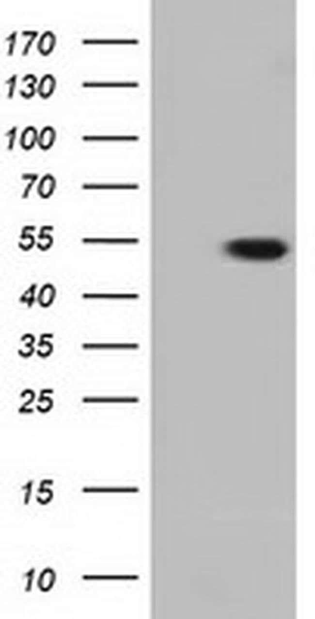 TUBA3E Mouse anti-Human, Clone: OTI2A8, liquid, TrueMAB  100 µL; Unconjugated