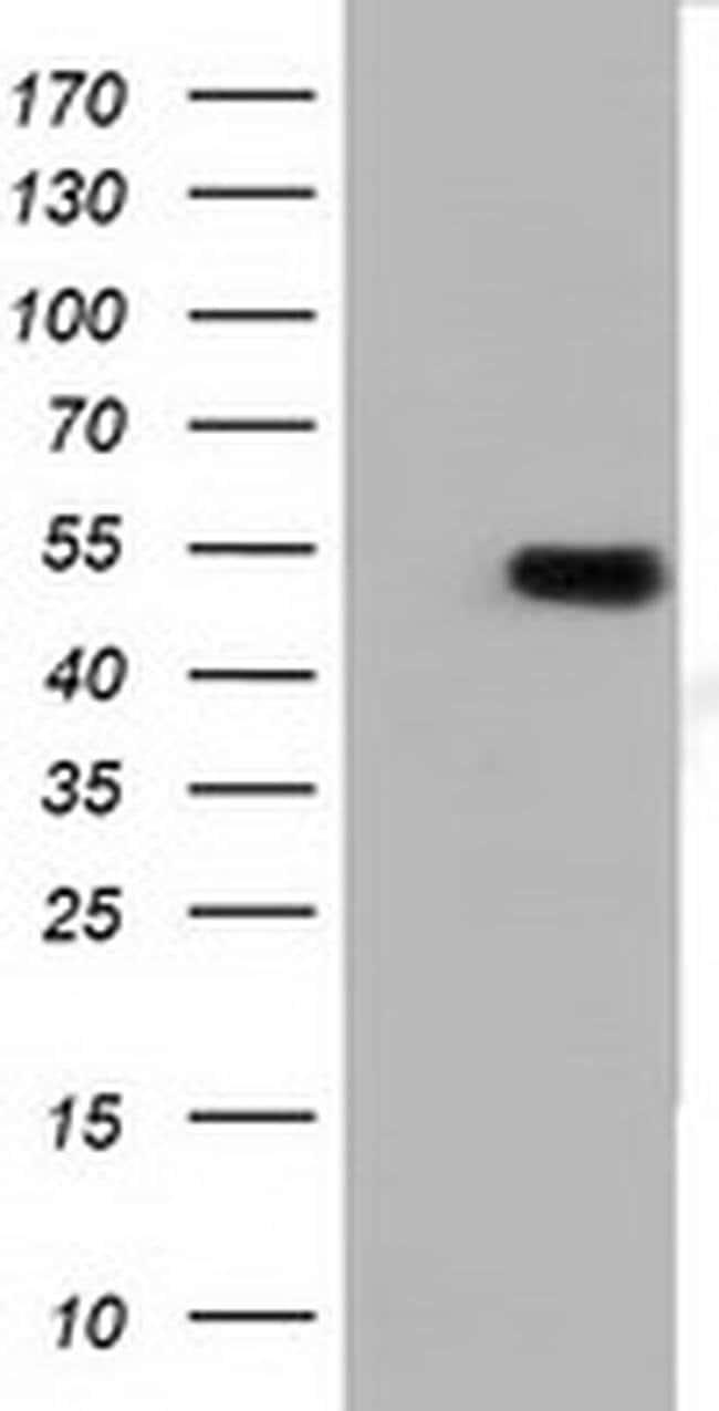 TUBA3E Mouse anti-Human, Clone: OTI10B4, liquid, TrueMAB  100 µL;