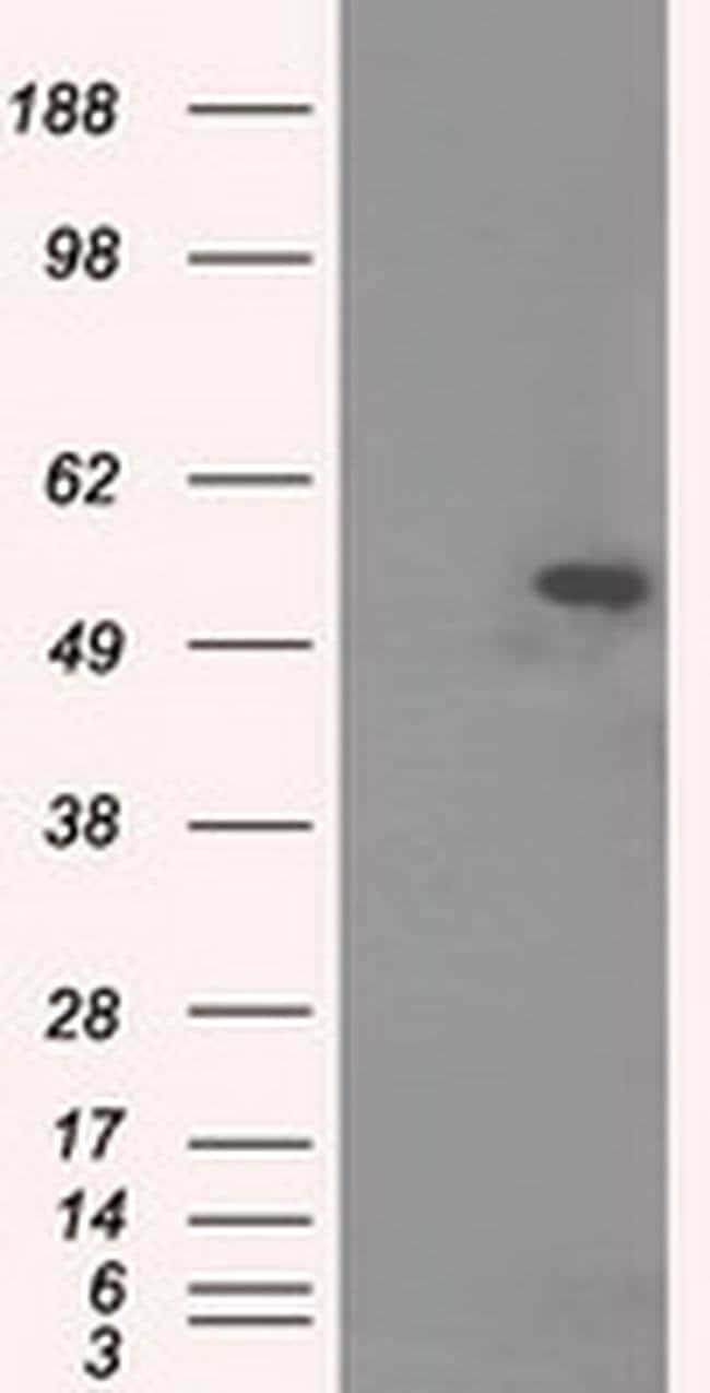 TUBA8 Mouse anti-Canine, Human, Rat, Clone: OTI2G6, liquid, TrueMAB  100