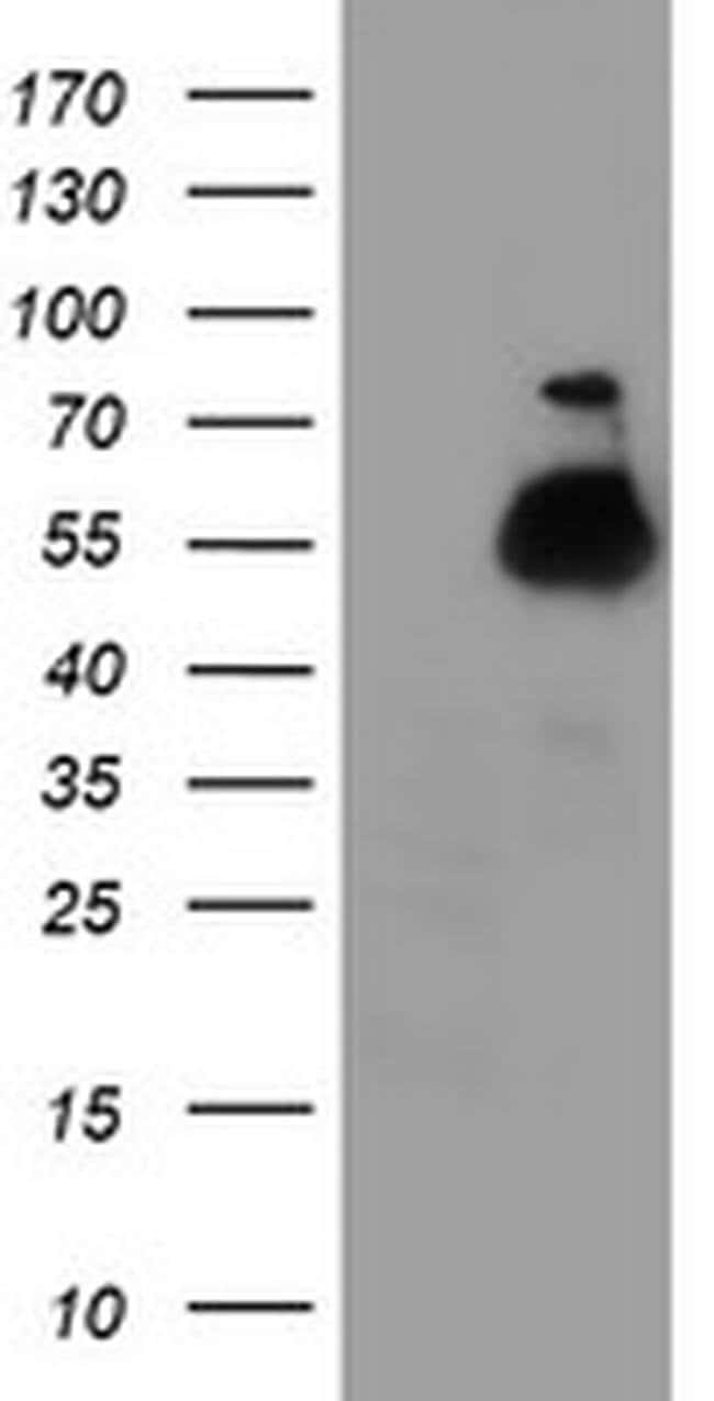TUBAL3 Mouse anti-Human, Clone: OTI4D8, liquid, TrueMAB  100 µL; Unconjugated