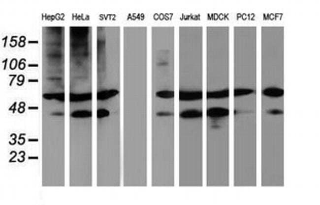 TUBAL3 Mouse anti-Human, Clone: OTI5F10, liquid, TrueMAB  100 µL;