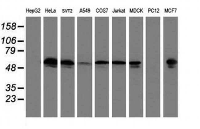 TUBAL3 Mouse anti-Human, Clone: OTI3B7, liquid, TrueMAB  100 µL; Unconjugated