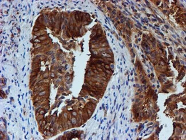 TUBB4 Mouse anti-Human, Clone: OTI8E3, liquid, TrueMAB  100 µL; Unconjugated