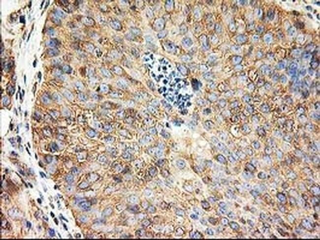 TUBB4 Mouse anti-Canine, Human, Mouse, Rat, Clone: OTI5C1, liquid, TrueMAB