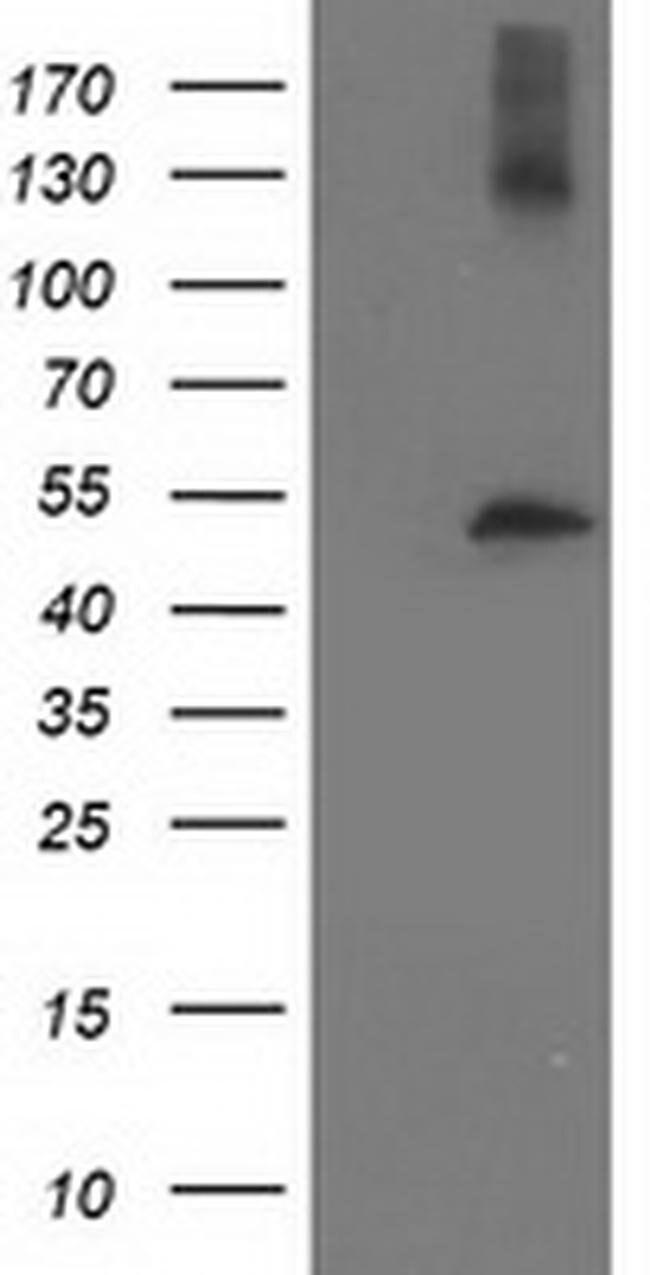 TUBB4 Mouse anti-Human, Clone: OTI6E3, liquid, TrueMAB  100 µL; Unconjugated